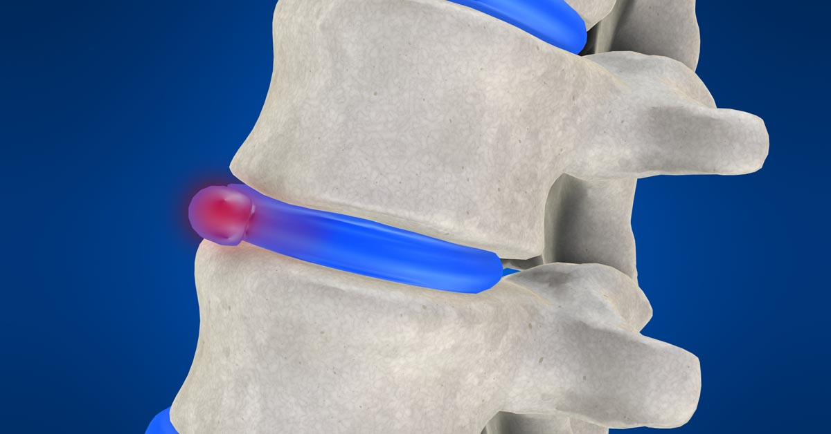 Massillon, OH non-surgical disc herniation treatment